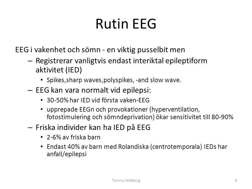 Rutin EEG EEG i vakenhet och sömn - en viktig pusselbit men – Registrerar vanligtvis endast interiktal epileptiform aktivitet (IED) Spikes,sharp waves