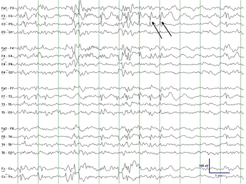 20 Epileptiska encefalopatier Neonatal epileptic encephalopathy with suppression-burst Epilepsi med migrerande fokala anfall (MPSI) West syndrom (infantila spasmer) Dravet syndrom SMEI Myoklon astatisk epilepsi (Doose syndrom) Lennox Gaustaut syndrom Landau Kleffner syndrom