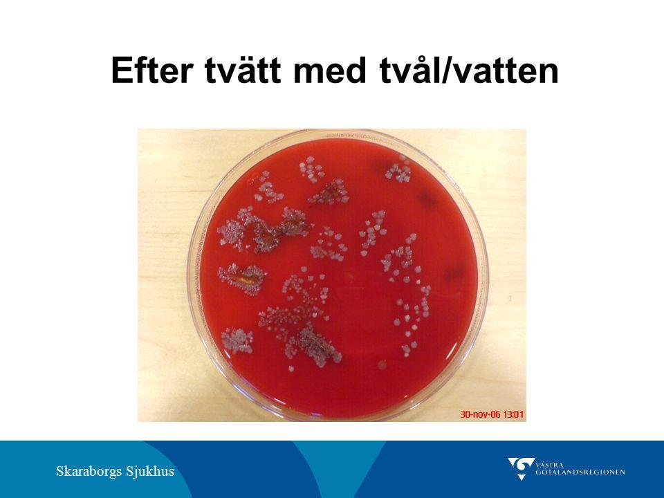 Skaraborgs Sjukhus Efter tvätt med tvål/vatten