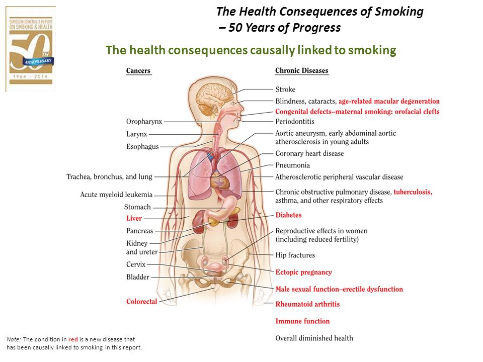 Note: The condition in red is a new disease that has been causally linked to smoking in this report. The health consequences causally linked to smokin