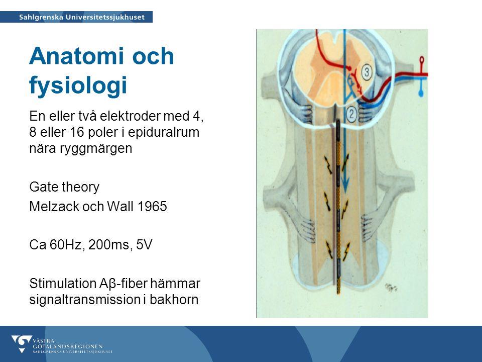 Anatomi och fysiologi En eller två elektroder med 4, 8 eller 16 poler i epiduralrum nära ryggmärgen Gate theory Melzack och Wall 1965 Ca 60Hz, 200ms, 5V Stimulation Aβ-fiber hämmar signaltransmission i bakhorn