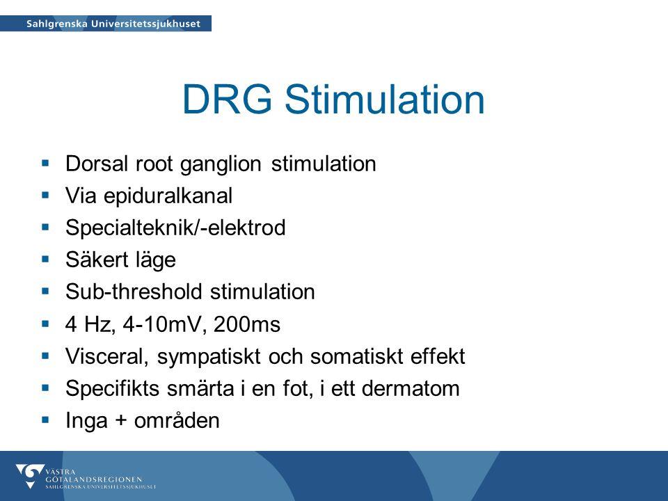 DRG Stimulation  Dorsal root ganglion stimulation  Via epiduralkanal  Specialteknik/-elektrod  Säkert läge  Sub-threshold stimulation  4 Hz, 4-10mV, 200ms  Visceral, sympatiskt och somatiskt effekt  Specifikts smärta i en fot, i ett dermatom  Inga + områden