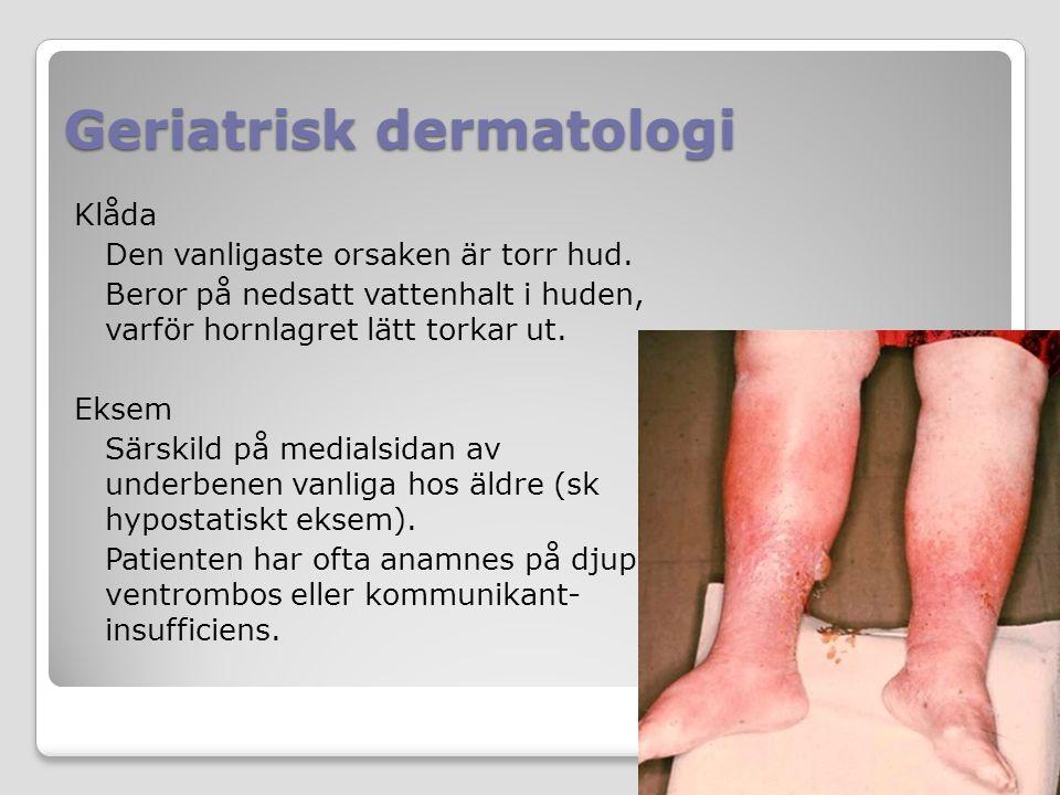 Geriatrisk dermatologi Klåda Den vanligaste orsaken är torr hud. Beror på nedsatt vattenhalt i huden, varför hornlagret lätt torkar ut. Eksem Särskild