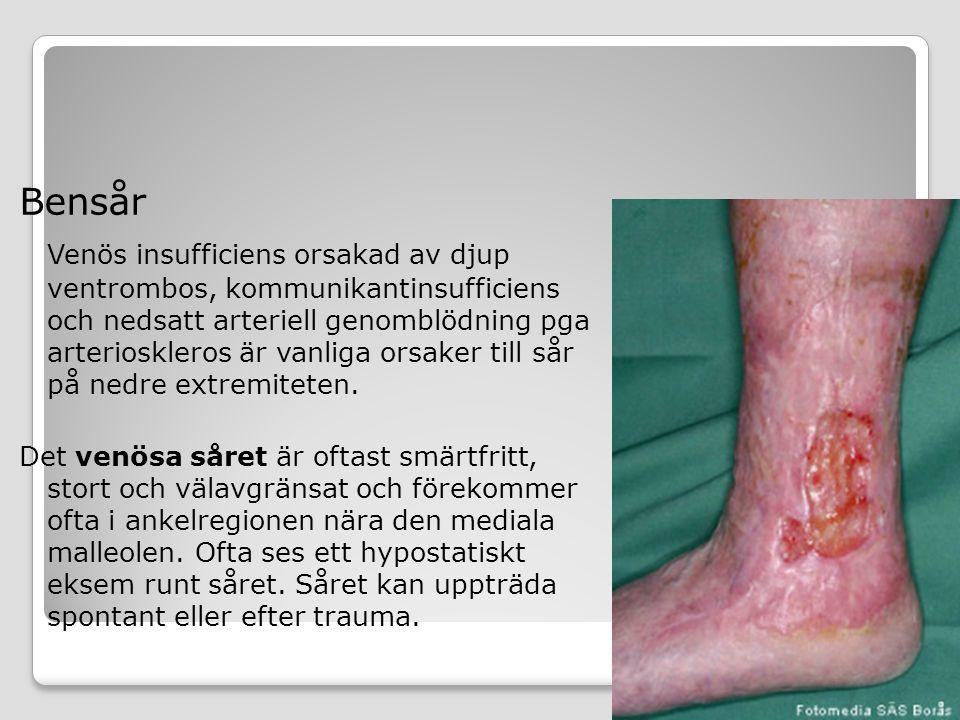 Bensår Venös insufficiens orsakad av djup ventrombos, kommunikantinsufficiens och nedsatt arteriell genomblödning pga arterioskleros är vanliga orsake