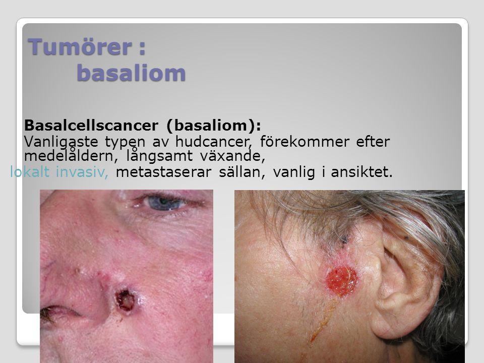 Basalcellscancer (basaliom): Vanligaste typen av hudcancer, förekommer efter medelåldern, långsamt växande, lokalt invasiv, metastaserar sällan, vanli