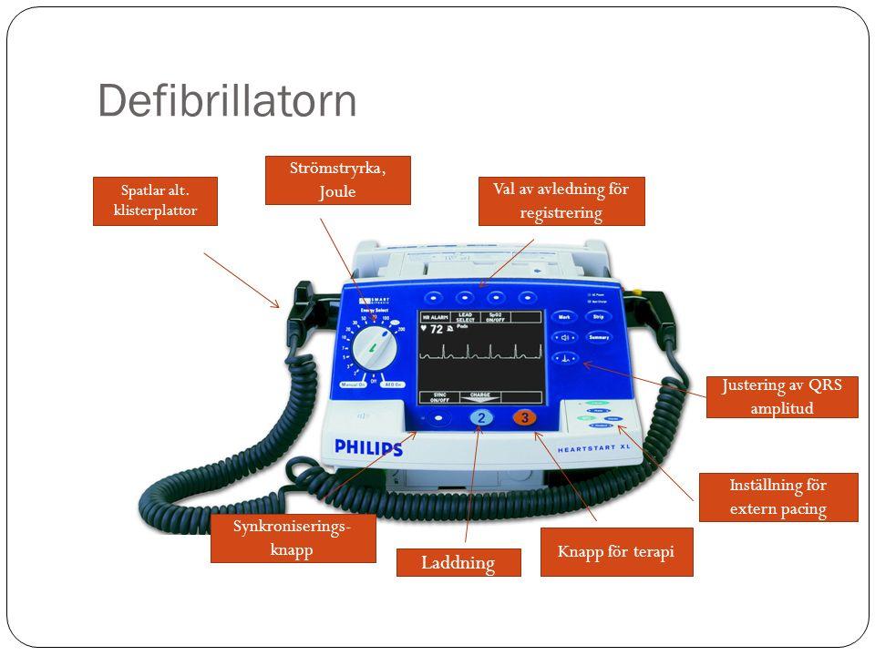 Defibrillatorn Strömstryrka, Joule Spatlar alt. klisterplattor Synkroniserings- knapp Inställning för extern pacing Justering av QRS amplitud Laddning