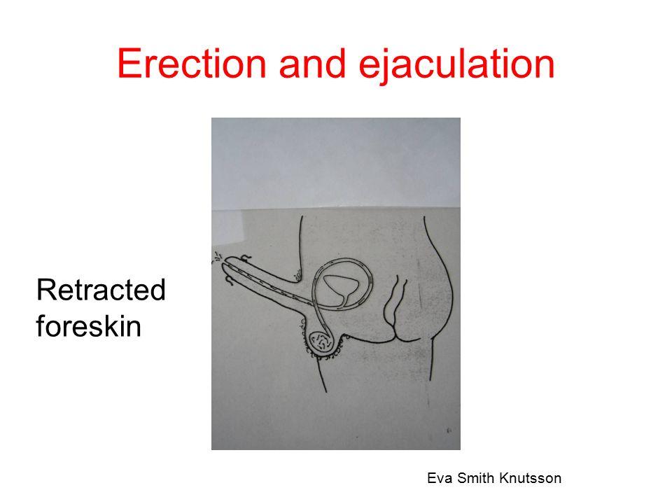 Medicinsk oophorektomi Infertilitet För tidigt klimakterium