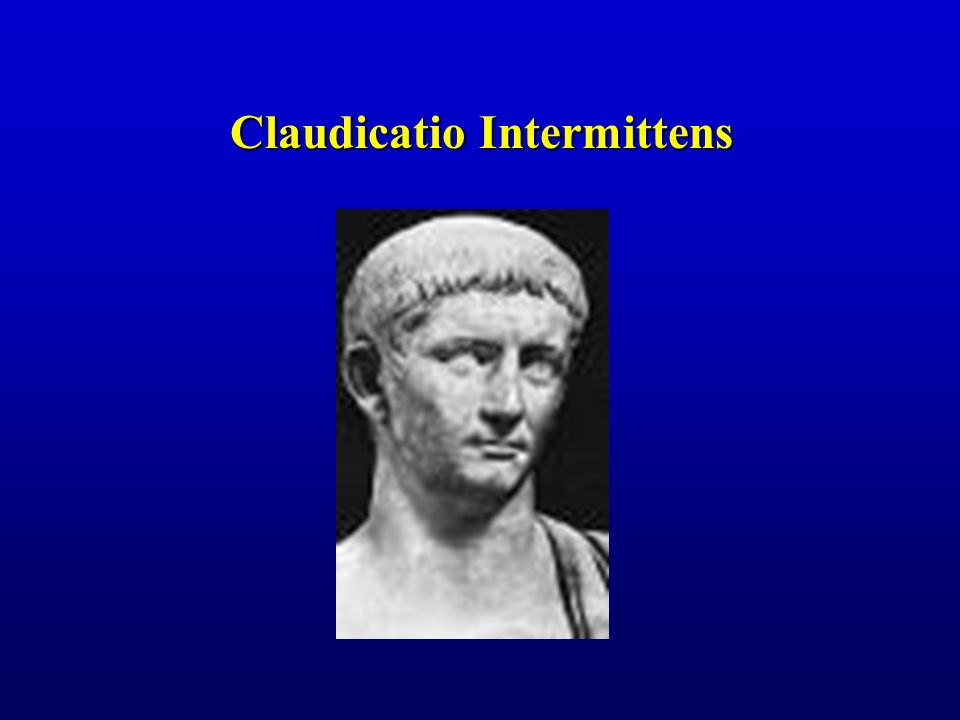 Claudicatio Intermittens