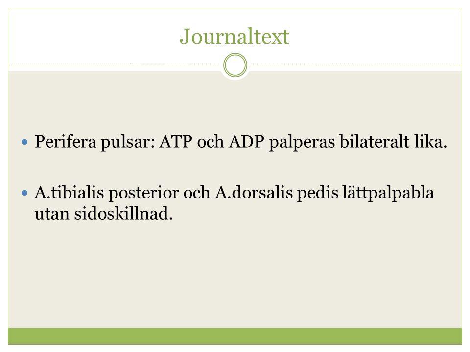 Journaltext Perifera pulsar: ATP och ADP palperas bilateralt lika. A.tibialis posterior och A.dorsalis pedis lättpalpabla utan sidoskillnad.