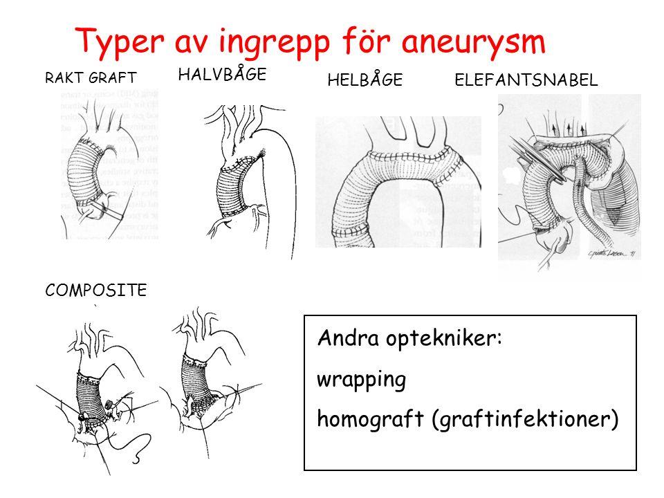 RAKT GRAFT COMPOSITE HALVBÅGE HELBÅGEELEFANTSNABEL Andra optekniker: wrapping homograft (graftinfektioner) Typer av ingrepp för aneurysm