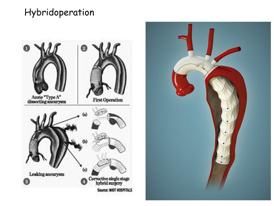 Hybridoperation