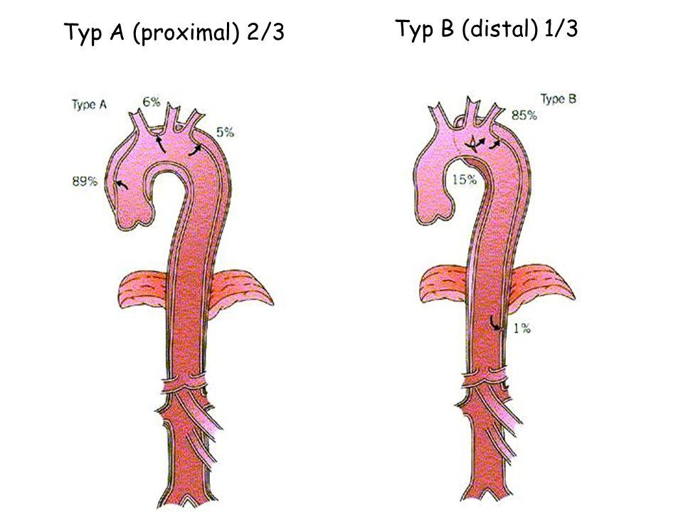 Typ A (proximal) 2/3 Typ B (distal) 1/3