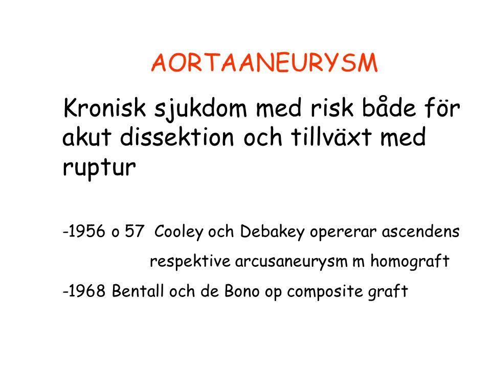 AORTAANEURYSM Kronisk sjukdom med risk både för akut dissektion och tillväxt med ruptur -1956 o 57 Cooley och Debakey opererar ascendens respektive arcusaneurysm m homograft -1968 Bentall och de Bono op composite graft