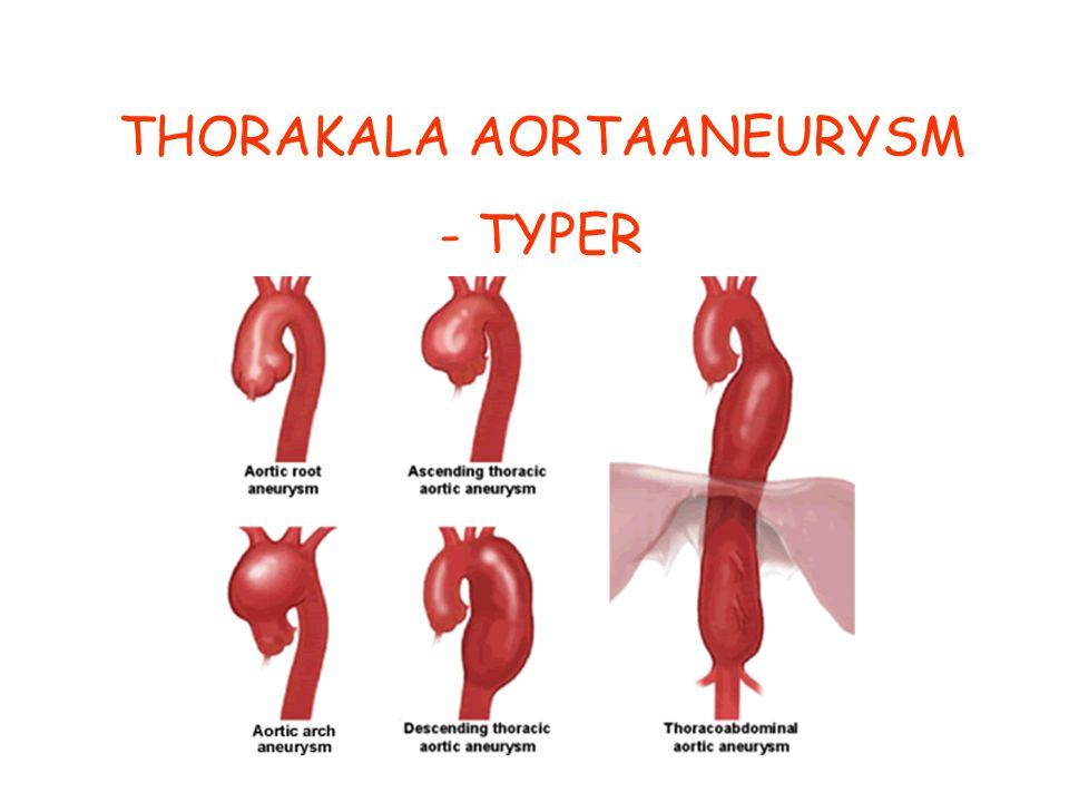 THORAKALA AORTAANEURYSM - TYPER