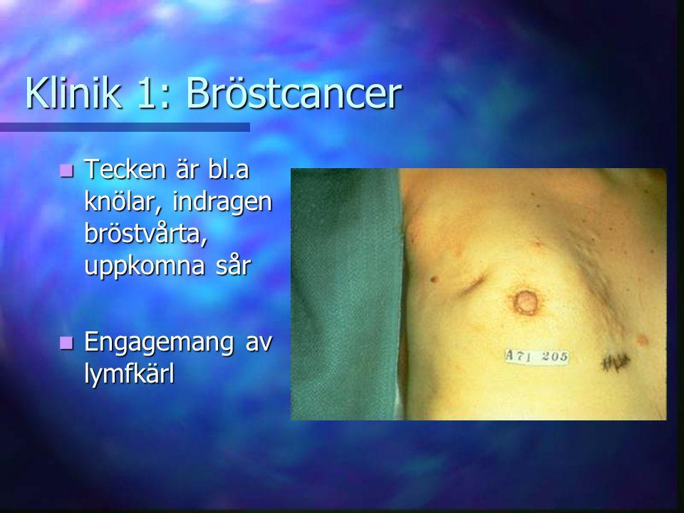 Klinik 1: Bröstcancer Tecken är bl.a knölar, indragen bröstvårta, uppkomna sår Tecken är bl.a knölar, indragen bröstvårta, uppkomna sår Engagemang av lymfkärl Engagemang av lymfkärl