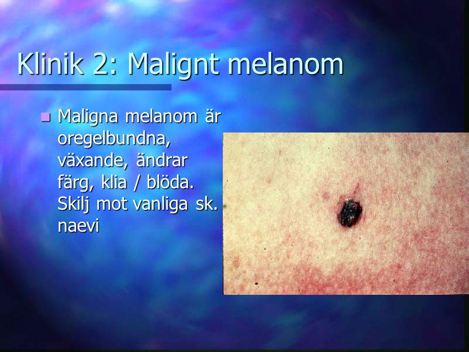 Klinik 2: Malignt melanom Maligna melanom är oregelbundna, växande, ändrar färg, klia / blöda.