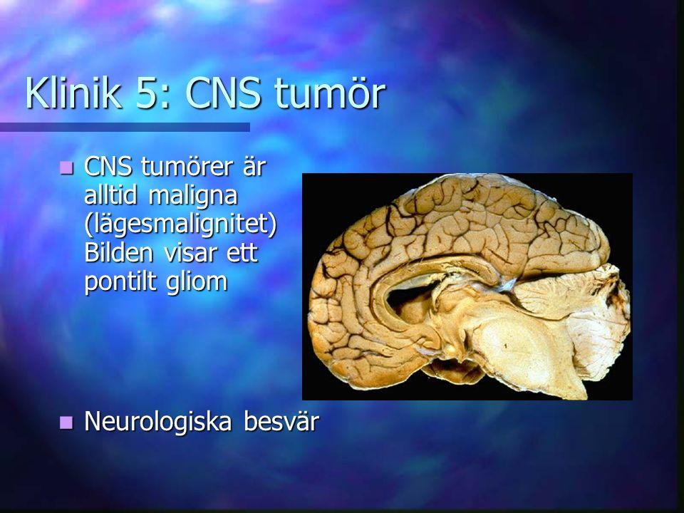 Klinik 5: CNS tumör CNS tumörer är alltid maligna (lägesmalignitet) Bilden visar ett pontilt gliom CNS tumörer är alltid maligna (lägesmalignitet) Bilden visar ett pontilt gliom Neurologiska besvär Neurologiska besvär