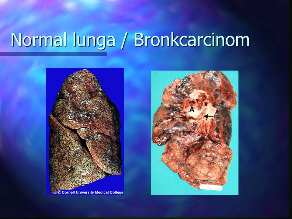 Normal lunga / Bronkcarcinom