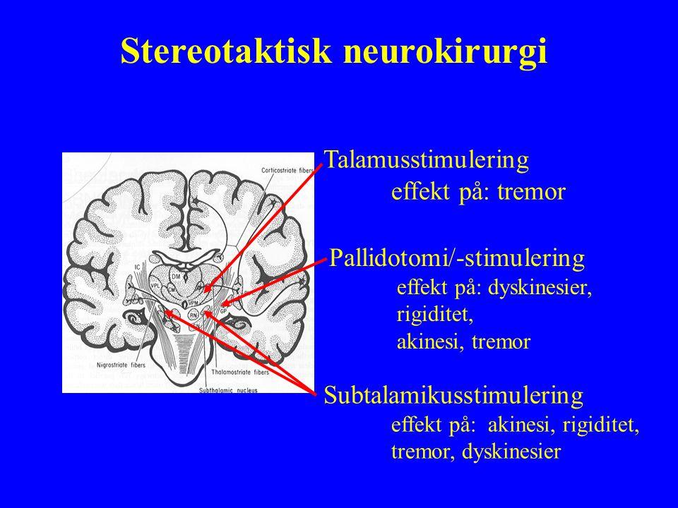 Talamusstimulering effekt på: tremor Pallidotomi/-stimulering effekt på: dyskinesier, rigiditet, akinesi, tremor Subtalamikusstimulering effekt på: ak