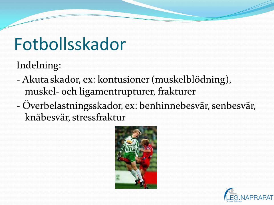 Fotbollsskador Indelning: - Akuta skador, ex: kontusioner (muskelblödning), muskel- och ligamentrupturer, frakturer - Överbelastningsskador, ex: benhi