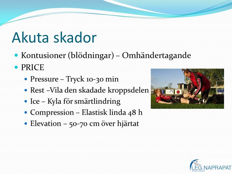 Akuta skador Kontusioner (blödningar) – Omhändertagande PRICE Pressure – Tryck 10-30 min Rest –Vila den skadade kroppsdelen Ice – Kyla för smärtlindri