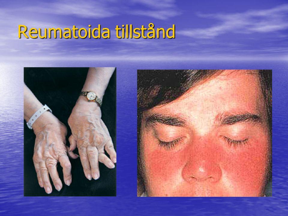 Behandling neurogen smärta Antidepressiva (Tryptizol, Klomipramin) Antidepressiva (Tryptizol, Klomipramin) Antiepileptika (Tegretol, Gabapentin, Pregabalin) Antiepileptika (Tegretol, Gabapentin, Pregabalin) Lokalanestetika (Lidokain) Lokalanestetika (Lidokain) Gaba-förstärkare (Baklofen) Gaba-förstärkare (Baklofen) Exempel på nyare läkemedel är: Exempel på nyare läkemedel är: –Neurontin (gabapentin) –Lyrica (Pregabalin) (Bägge är GABA-liknande substanser men binder till subenheter på spänningsstyrda kalciumkanaler) Blockader Blockader Nervavskärning!?!.