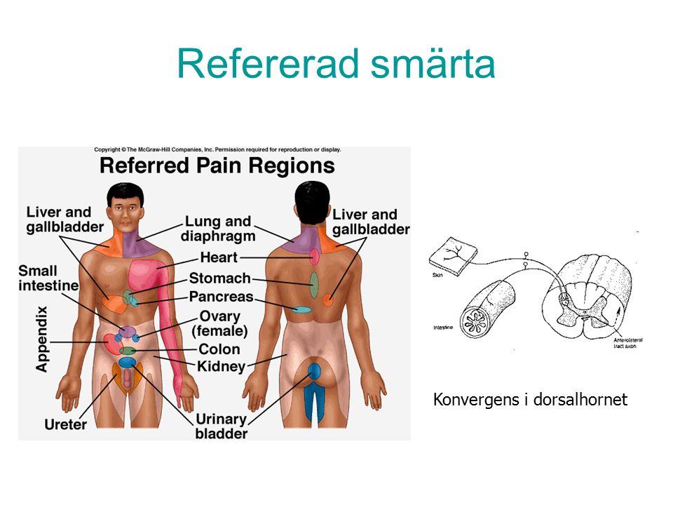 Refererad smärta Konvergens i dorsalhornet
