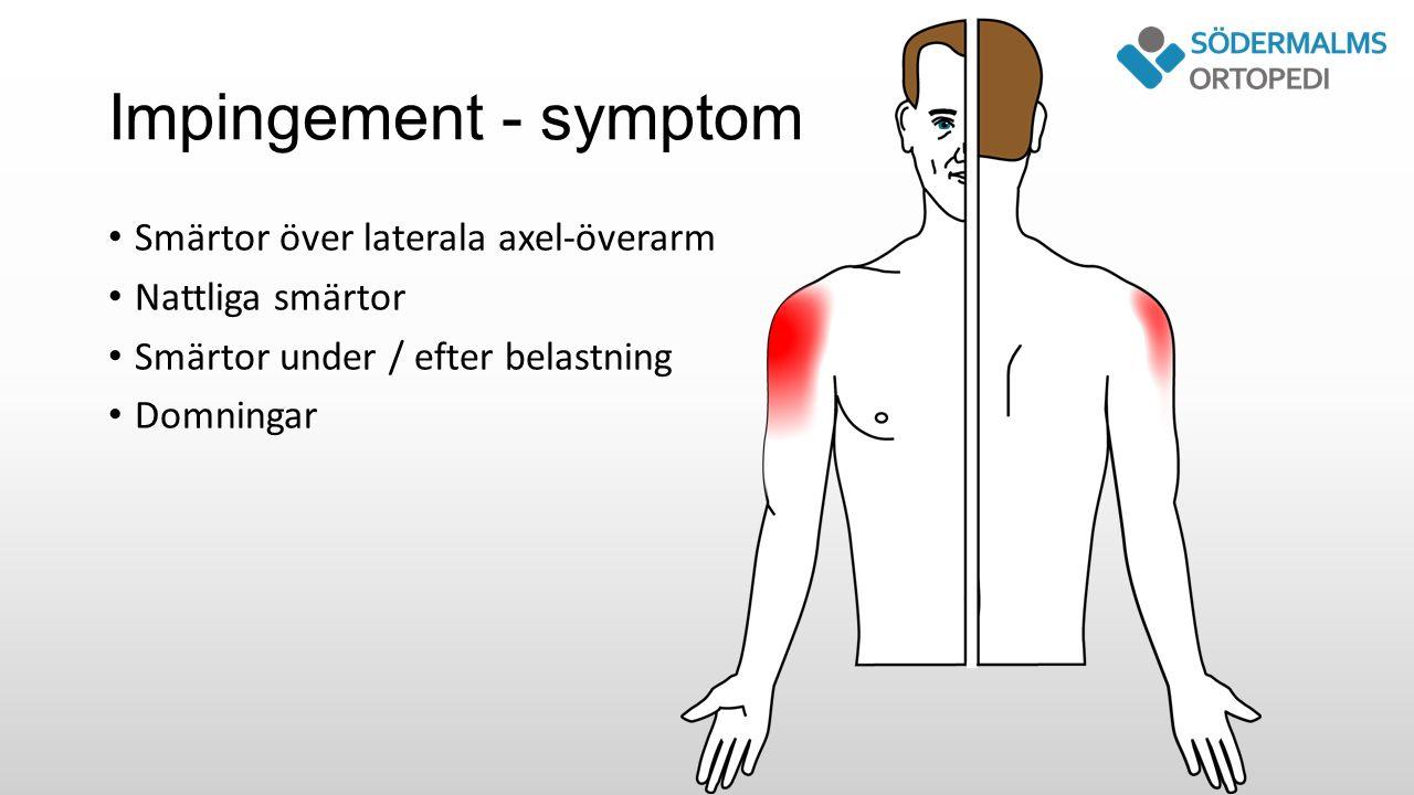 Impingement - symptom Smärtor över laterala axel-överarm Nattliga smärtor Smärtor under / efter belastning Domningar
