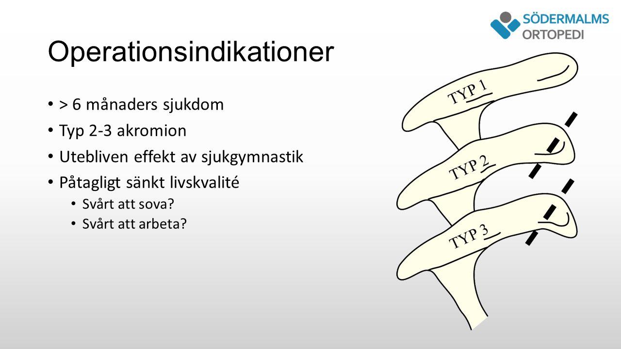 Operationsindikationer > 6 månaders sjukdom Typ 2-3 akromion Utebliven effekt av sjukgymnastik Påtagligt sänkt livskvalité Svårt att sova.