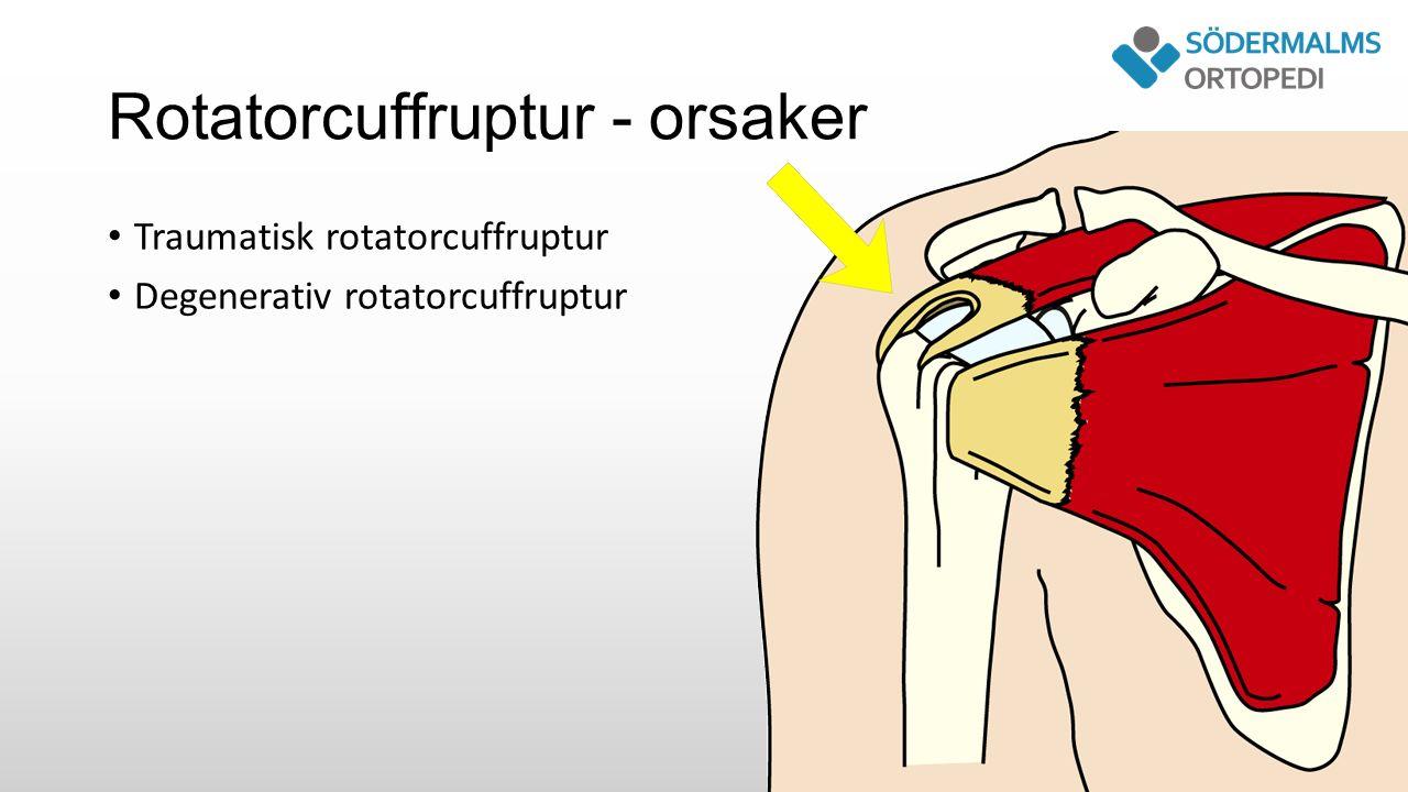 Rotatorcuffruptur - orsaker Traumatisk rotatorcuffruptur Degenerativ rotatorcuffruptur