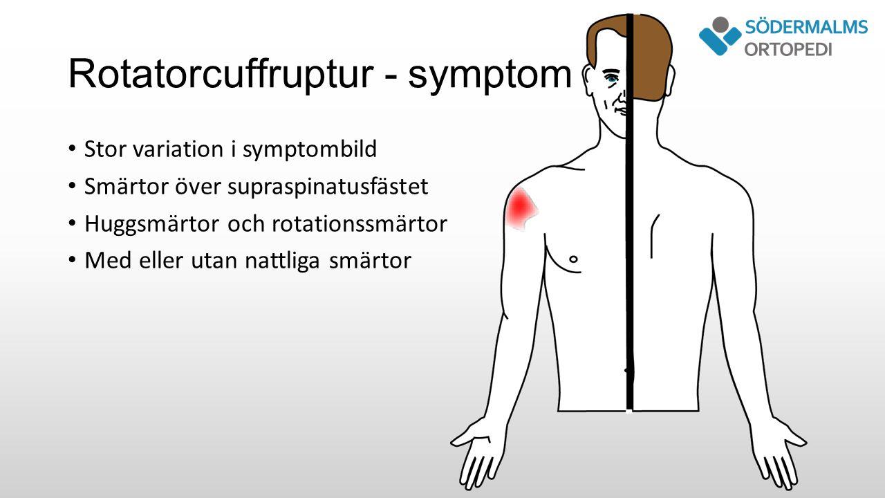 Rotatorcuffruptur - symptom Stor variation i symptombild Smärtor över supraspinatusfästet Huggsmärtor och rotationssmärtor Med eller utan nattliga smärtor