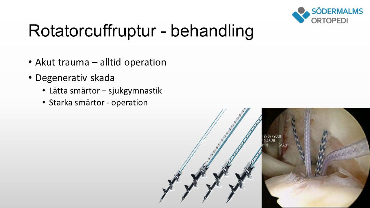 Rotatorcuffruptur - behandling Akut trauma – alltid operation Degenerativ skada Lätta smärtor – sjukgymnastik Starka smärtor - operation