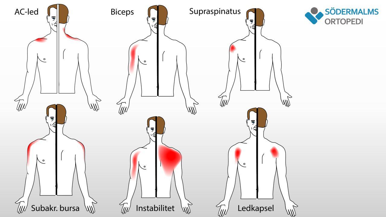 Impingement - orsaker Ledhuvudet rör sig uppåt Finmotorisk störning Akromion böjer sig nedåt AC-leds artros Cuffskador Stelhet Instabilitet