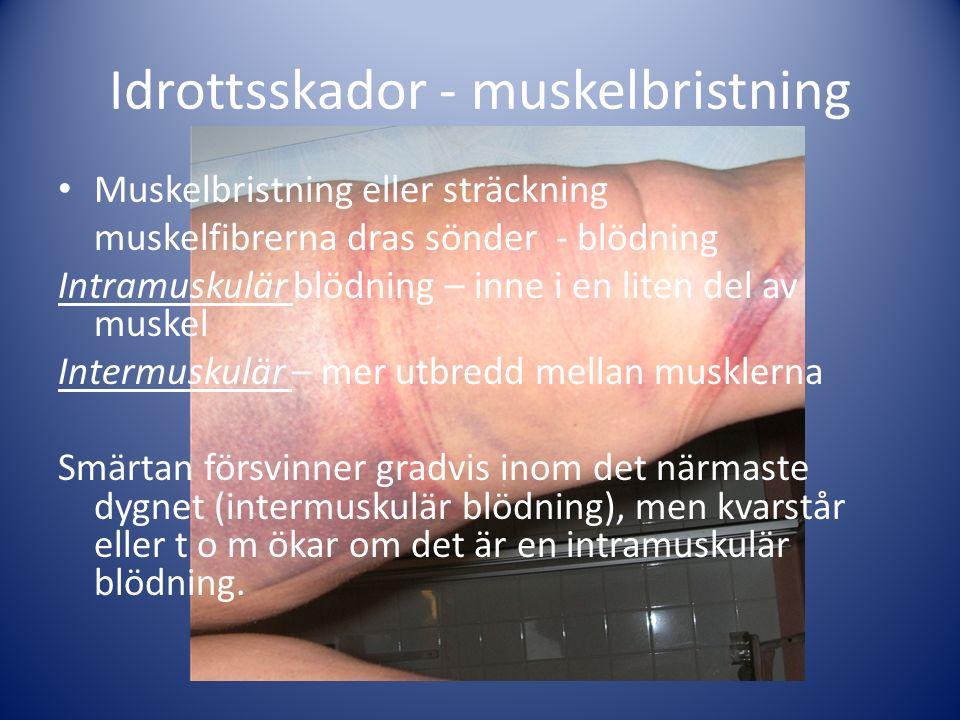 Idrottsskador - muskelbristning Muskelbristning eller sträckning muskelfibrerna dras sönder - blödning Intramuskulär blödning – inne i en liten del av