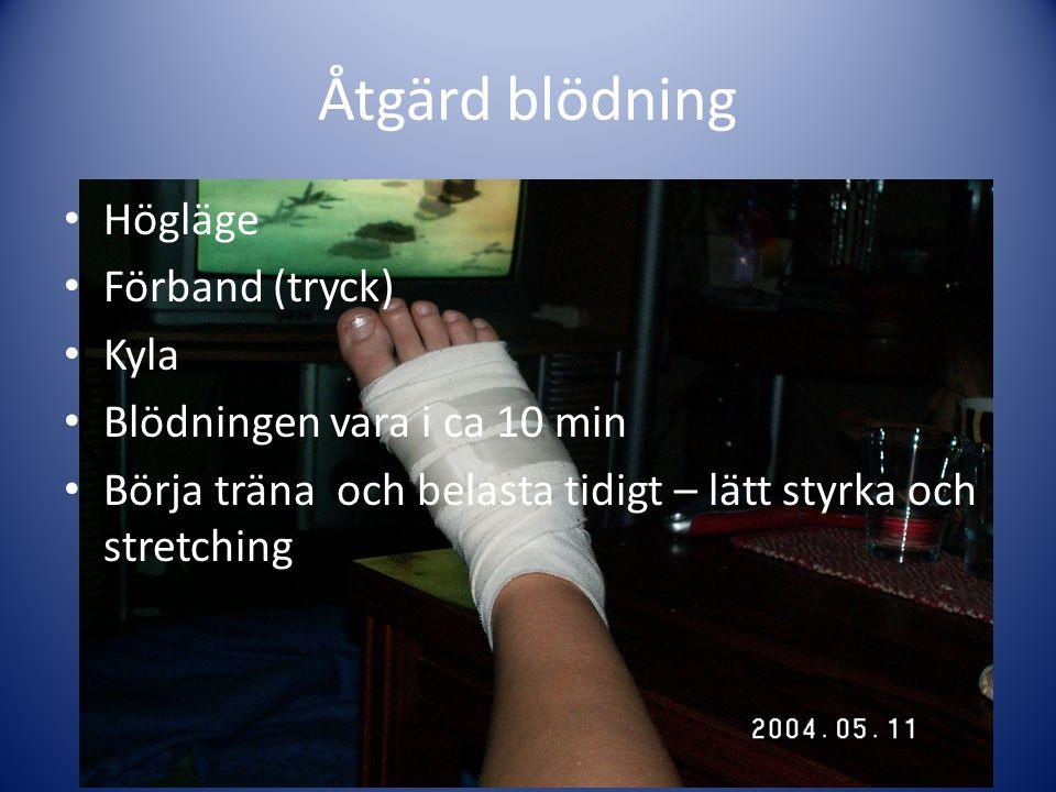 Åtgärd blödning Högläge Förband (tryck) Kyla Blödningen vara i ca 10 min Börja träna och belasta tidigt – lätt styrka och stretching