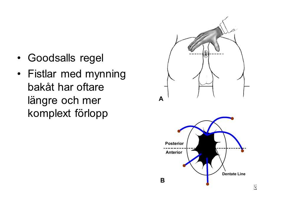 Goodsalls regel Fistlar med mynning bakåt har oftare längre och mer komplext förlopp