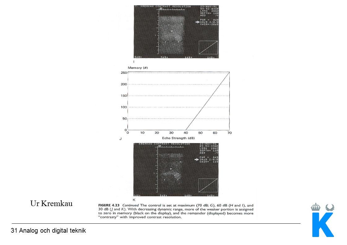31 Analog och digital teknik Ur Kremkau