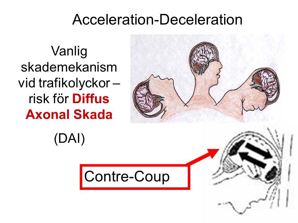 Vanlig skademekanism vid trafikolyckor – risk för Diffus Axonal Skada (DAI) Contre-Coup Acceleration-Deceleration