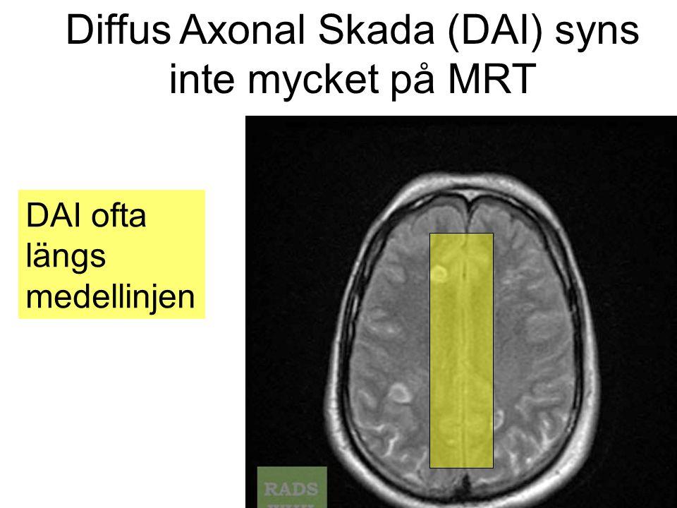 Diffus Axonal Skada (DAI) syns inte mycket på MRT DAI ofta längs medellinjen