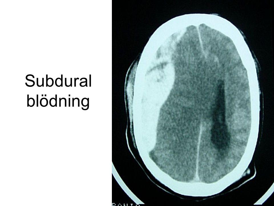 Subdural blödning