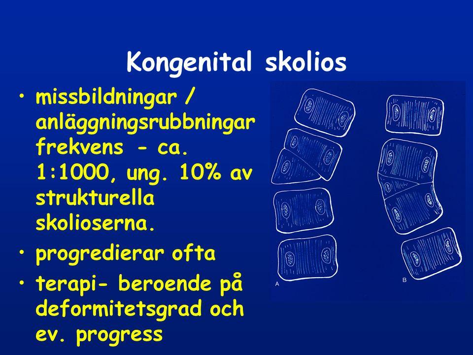 Kongenital skolios missbildningar / anläggningsrubbningar frekvens - ca.