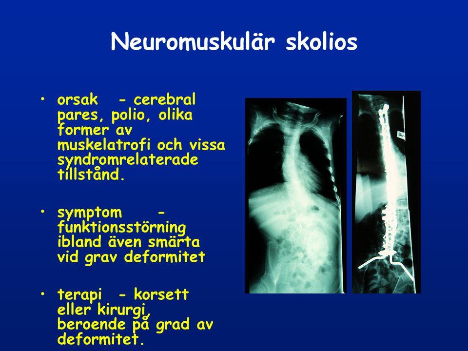 Neuromuskulär skolios orsak - cerebral pares, polio, olika former av muskelatrofi och vissa syndromrelaterade tillstånd.
