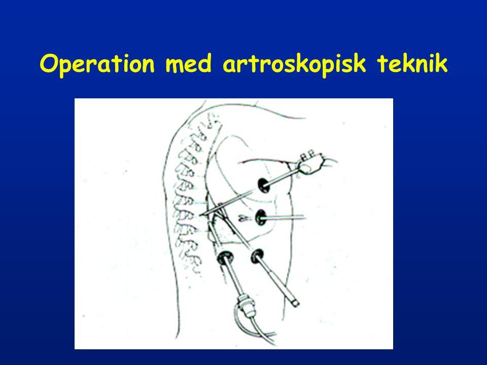 Operation med artroskopisk teknik