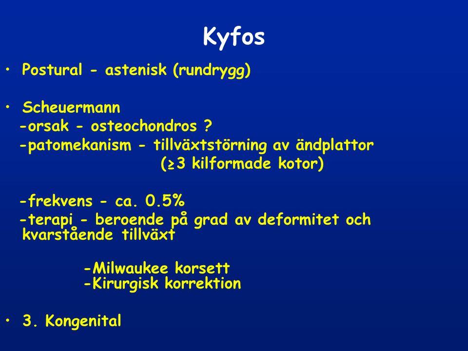 Kyfos Postural - astenisk (rundrygg) Scheuermann -orsak - osteochondros .