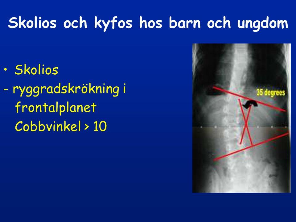 Idiopatisk skolios 85% av skoliospat etiologi- okänd klassifikation: - infantil - ovanlig (diagnos < 3 år) - juvenil - ovanlig (diagnos 3-10 år) - adolescent –85 % (diagnos >10 år)