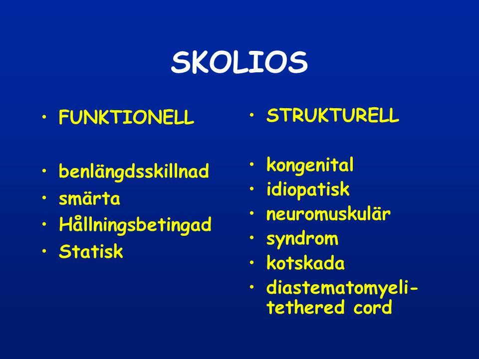 SKOLIOS FUNKTIONELL benlängdsskillnad smärta Hållningsbetingad Statisk STRUKTURELL kongenital idiopatisk neuromuskulär syndrom kotskada diastematomyeli- tethered cord