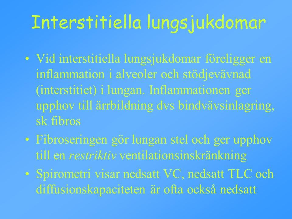 Interstitiella lungsjukdomar Vid interstitiella lungsjukdomar föreligger en inflammation i alveoler och stödjevävnad (interstitiet) i lungan.