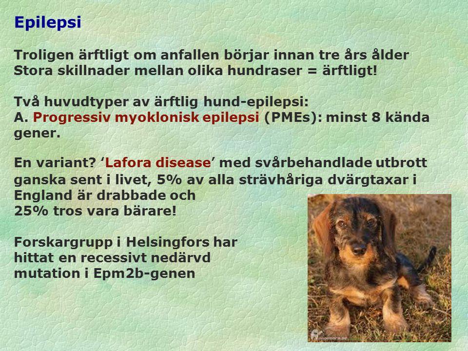 Epilepsi B.