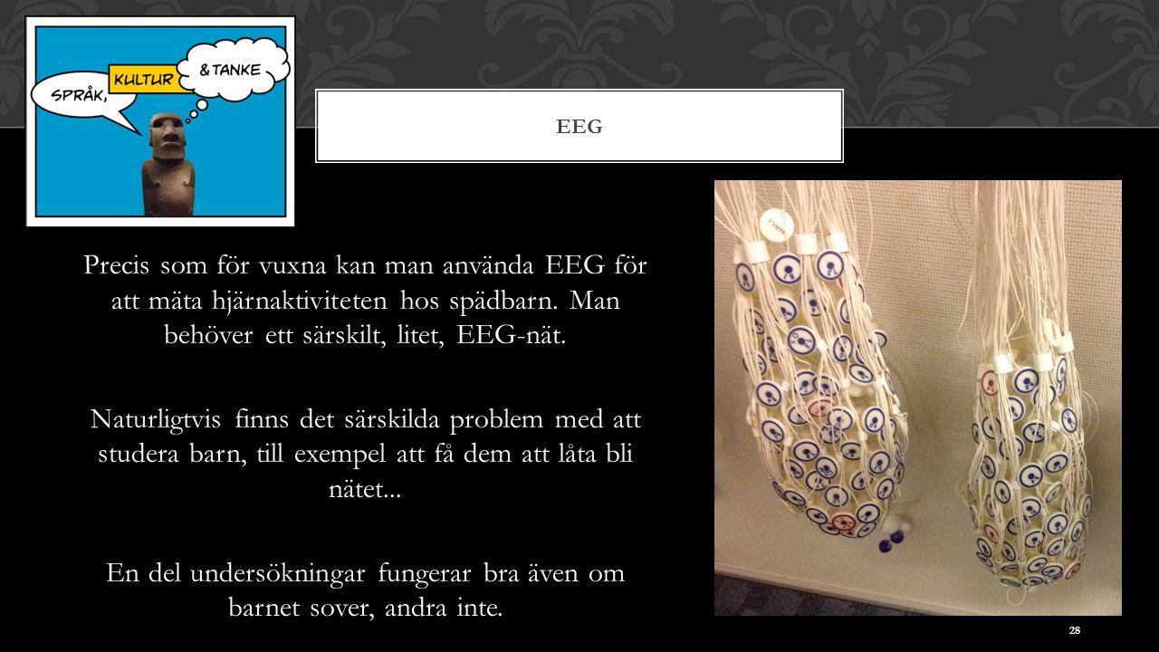 EEG Precis som för vuxna kan man använda EEG för att mäta hjärnaktiviteten hos spädbarn.