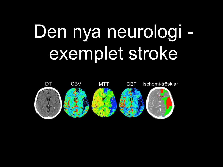 Den nya neurologi - exemplet stroke